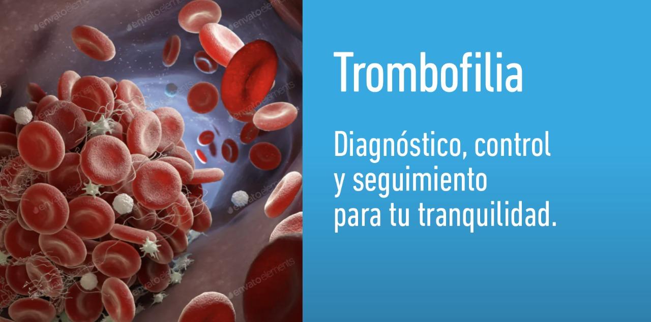 Estudios para detectar trombofilia